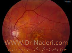 age-related macular degeneration dry type دژنراسیون خشک ماکولا