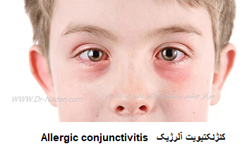 Allergic conjunctivitis  کنژنکتیویت آلرژیک