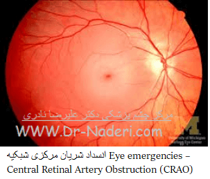 Central retinal artery occlussion (CRAO) انسداد شريان مرکزى شبکيه
