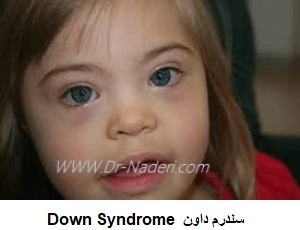 Down Syndrome سندرم داون