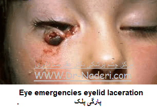 Eye emergencies  eyelid lacerationپارگی پلک
