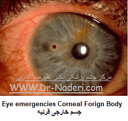 Eye emergencies Corneal Forign Bodyجسم خارجی قرنیه
