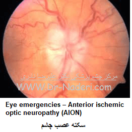 Eye emergencies - Anterior ischemic optic neuropathy (AION)سکته عصب چشم