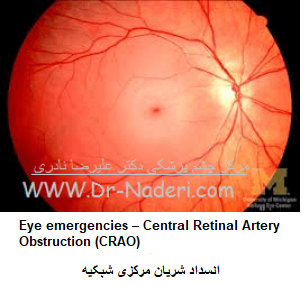 Eye emergencies - Central Retinal Artery Obstruction (CRAO) انسداد شریان مرکزی شبکیه