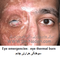 Eye emergencies - eye thermal burn سوختگی حرارتی چشم