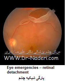 Eye emergencies - retinal detachmentپارگی شبکیه چشم