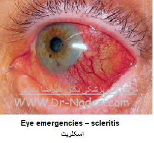 Eye emergencies - اسکلریت