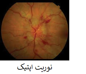 optic neuritis نوریت اپتیک